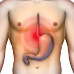 La via naturale ed efficace per risolvere il reflusso gastro-esofageo